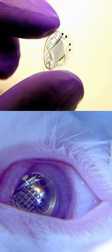 Elektronik kontak lens geliştirildi