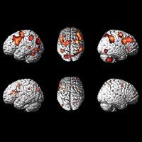 Bilim adamları yapay beyin üretmeye hazırlanıyor