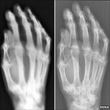 1985'ten kalma röntgen cihazı!