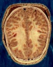 İnsan beyni kendini nasıl yapılandırıyor?
