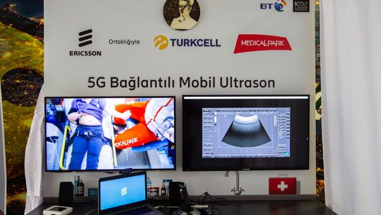 5G ile uzaktan ultrason taraması nasıl yapılıyor?