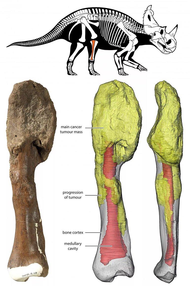 İnsanlarda Rastlanan Kansere, Dinozor Kemiğinde de Rastlandı